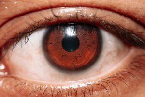 Dry Eyes